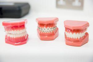 Eclipse-Dental-Care-19
